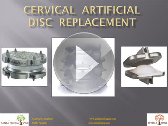 cervical_artificial