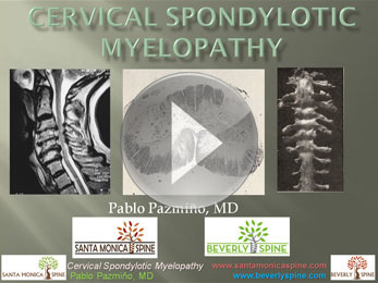 cervical_myelopathy