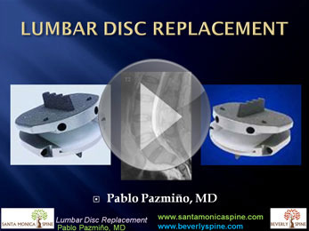 lumbar_disc_replacement