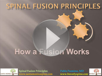 spinal_fusion